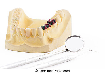 Denture cast model and dental tools - Denture cast model and...