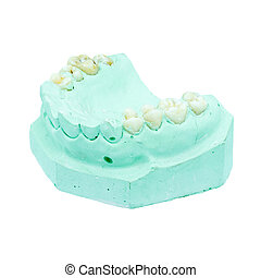 Denture cast model
