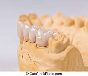 Denture made of ceramics located on plaster model