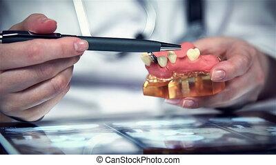 Denture Model - Dentist Shows Model Of Dental Prosthesis...