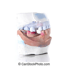 Denture mold, broken tooth on white background.