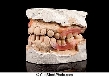 Dentures on a plaster cast
