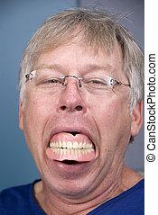 Dentures - A man displays his false teeth (dentures) which...