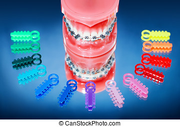 Dentures with braces surrounded by multicolored ligature...