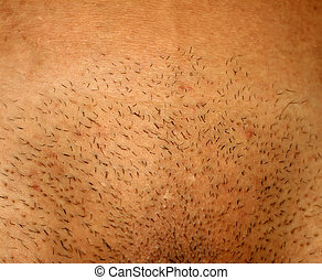 Depilation of the intimate bikini zone. Shaved pubis. -...
