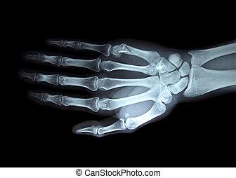 derecho, radiografía, mano