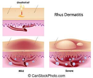 dermatite, rhus, contato, eps8