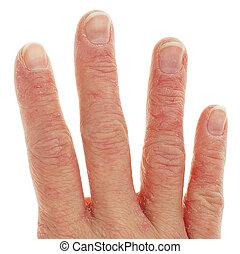 dermatitis, primer plano, dedos, eczema