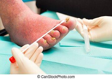 Dermatological Examination on Arteriosclerotical Leg With...