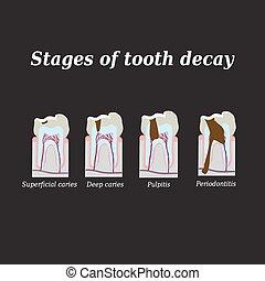 desarrollo, dental, ilustración, caries., vector, fondo...