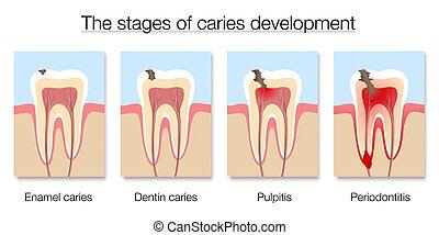 desarrollo, diente, caries, secciones, cruz, decaimiento, etapas