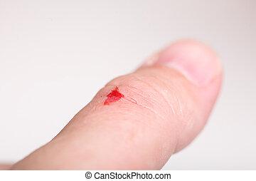 desinfectar, el, rasguño, alcohol, cortes, mano, salud