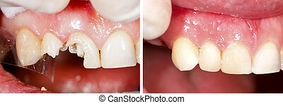 Destroyed teeth being restorated - part of beforeafter series.