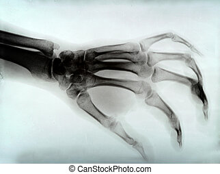 hand xray - detail of hand xray medical image