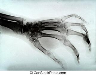 hand xray - detail of hand xray medical image