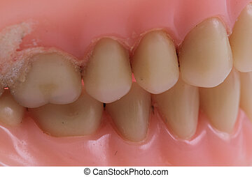 detail plastic teeth