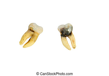 extracted molar with cavity - detailed view of extracted ...