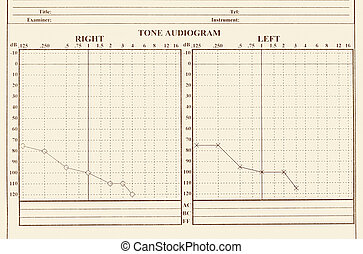 hearing medical chart showing, audiology