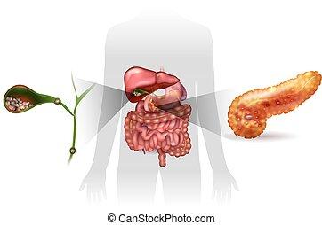 detallado, agudo, illustration., cálculos biliares, pancreatitis, anatomía, brillante, vesícula biliar