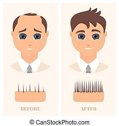 devant, avant, perte, homme, vue, cheveux, traitement, après