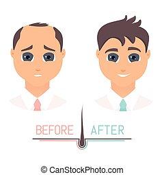 devant, cheveux, avant, traitement, perte, vue, homme, après