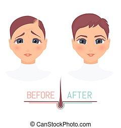 devant, femme, après, avant, perte, traitement, cheveux, vue