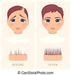 devant, femme, perte, après, avant, traitement, cheveux, vue