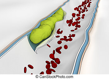 Development of  embolus through the formation of thrombus