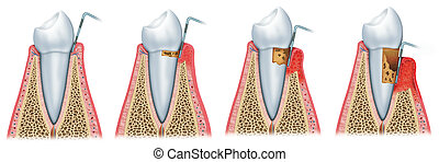 Development of periodontitis - sequence and evolution of...