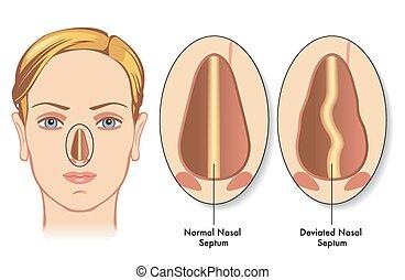 deviated nasal septum - medical illustration of the symptoms...