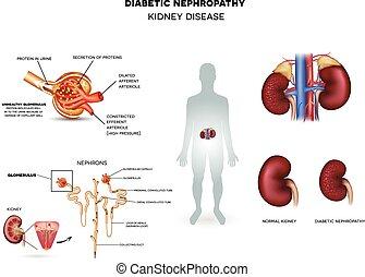 diabético, nephropathy, enfermedad, riñón