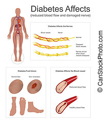 Diabetes affects the nerves and vessels. - The Nerves in leg...