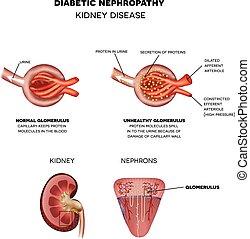 diabetička, nephropathy, nemoc, ledvina
