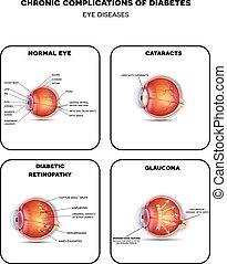 Diabetic Eye Diseases. Diabetic retinopathy, cataract and glaucoma. Also healthy eye detailed anatomy.