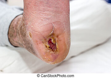 ulcer - diabetic foot syndrome with ulcer