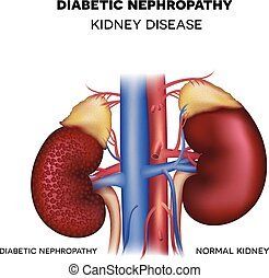 Diabetic Nephropathy, kidney disease caused by Diabetes