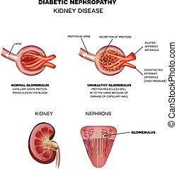 Diabetic Nephropathy, kidney disease caused by Diabetes. Renal corpuscle and glomerulus, a part of the kidney