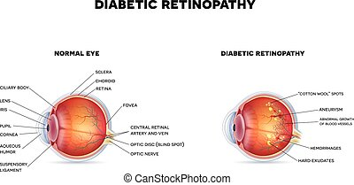 Diabetic retinopathy and healthy eye. The eye condition that...
