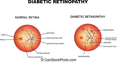 Diabetic retinopathy - Diabetic retinopathy. The eye...