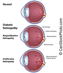 Eye disease due to diabetes