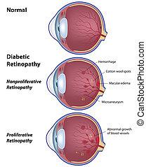 Diabetic retinopathy, eps8 - Eye disease due to diabetes