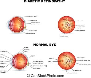 Diabetic retinopathy on a abstract background, detailed ...
