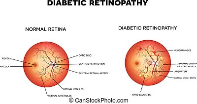 Diabetic retinopathy. The eye condition that affect people ...