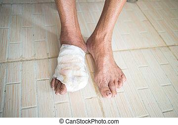 Diabetic ulcers at the foot - incise toe foot of diabetic ...