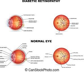 diabetiker, retinopathy