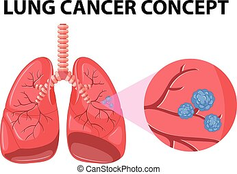 diagram, begrepp, lungcancer