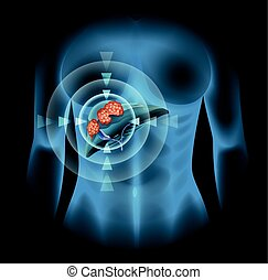 diagram, cancer, lever, mänsklig