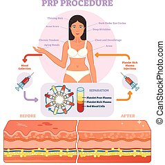 diagram, grafisk, kosmetologi, illustration, procedur, ...