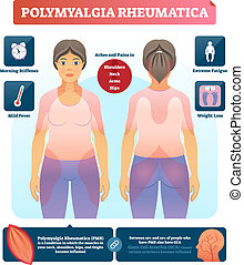 diagram., illustration., polymyalgia, etiquetado, vetorial,...