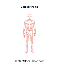 Diagram of body with joint damage by osteoarthritis, flat vector illustration.